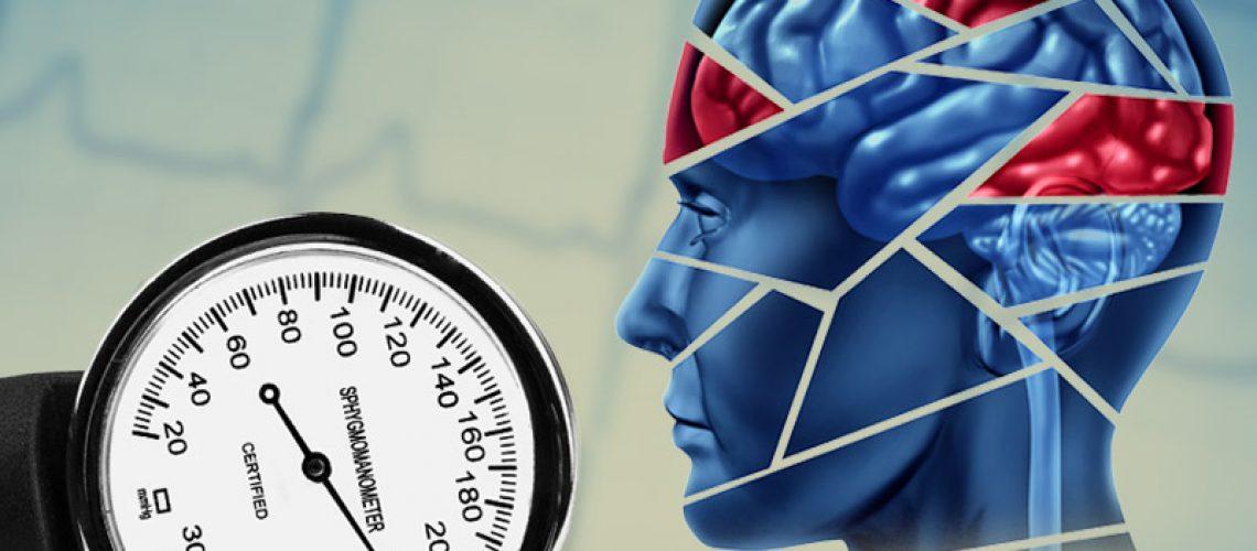 Hypertension-Dementia